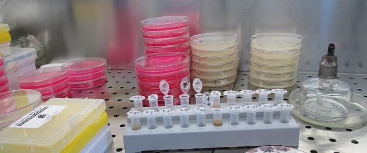 bakterie w wodzie ze studni